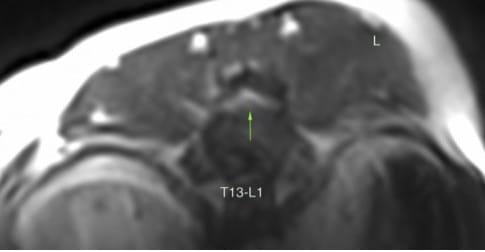 Kyro Hales MRI Scan