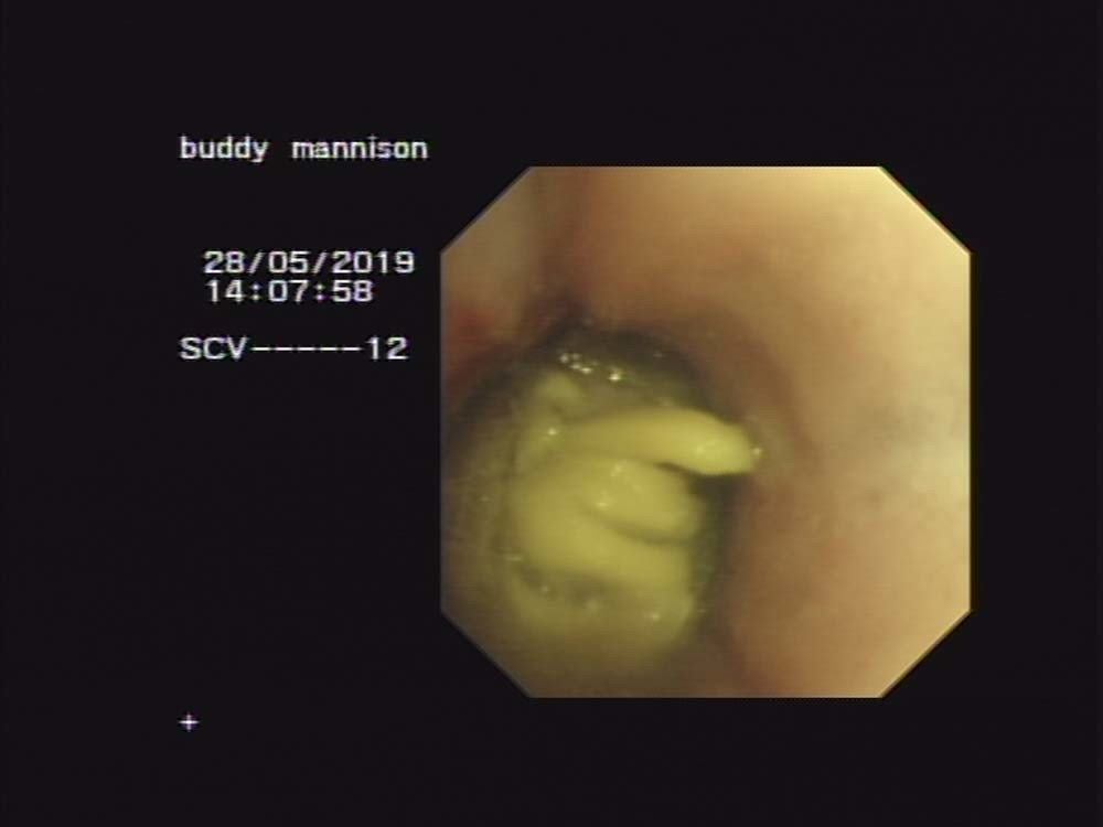 Endoscopy and Thoracotomy